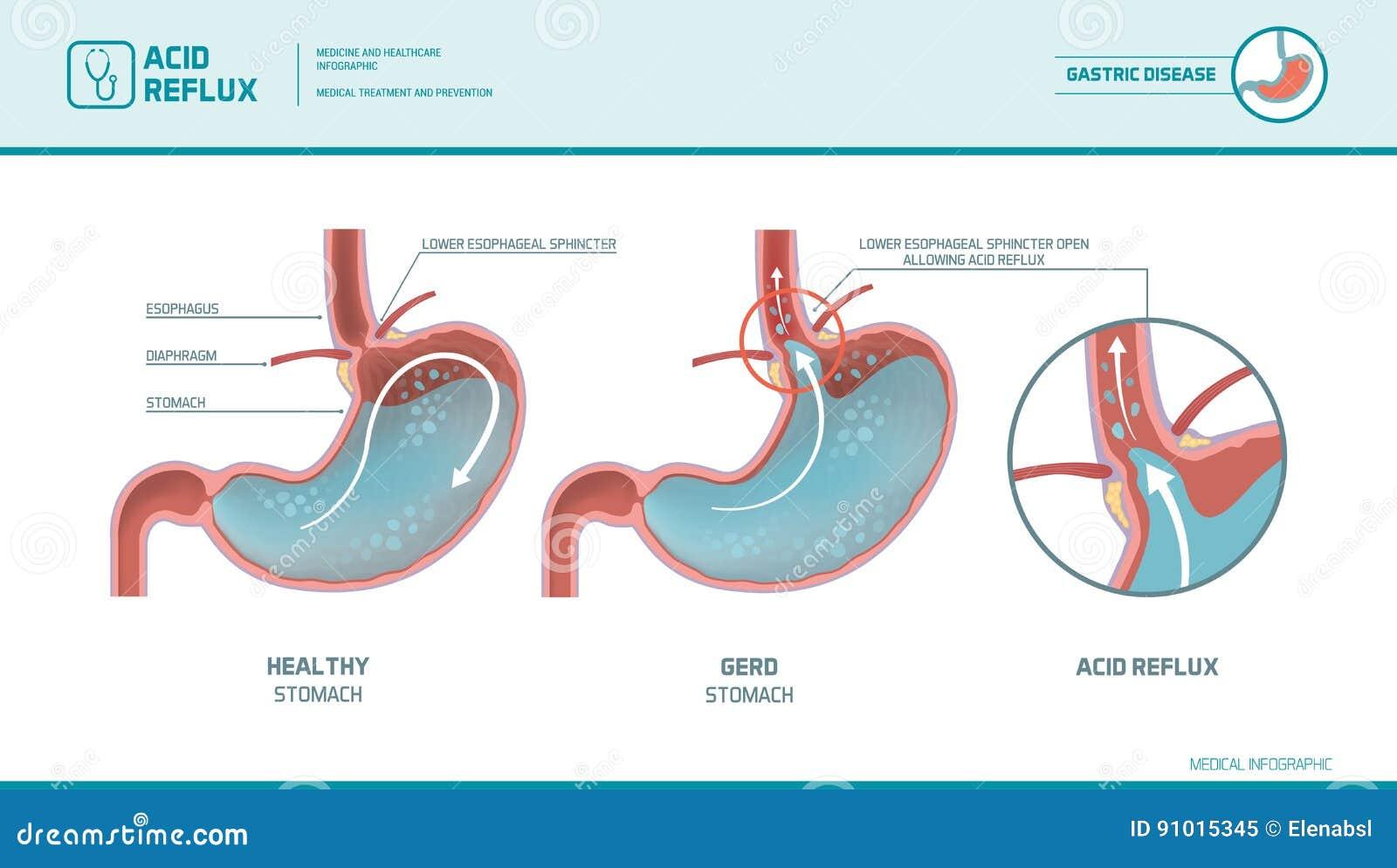 Acid Reflux And Heartburn Infographic Stock Vector
