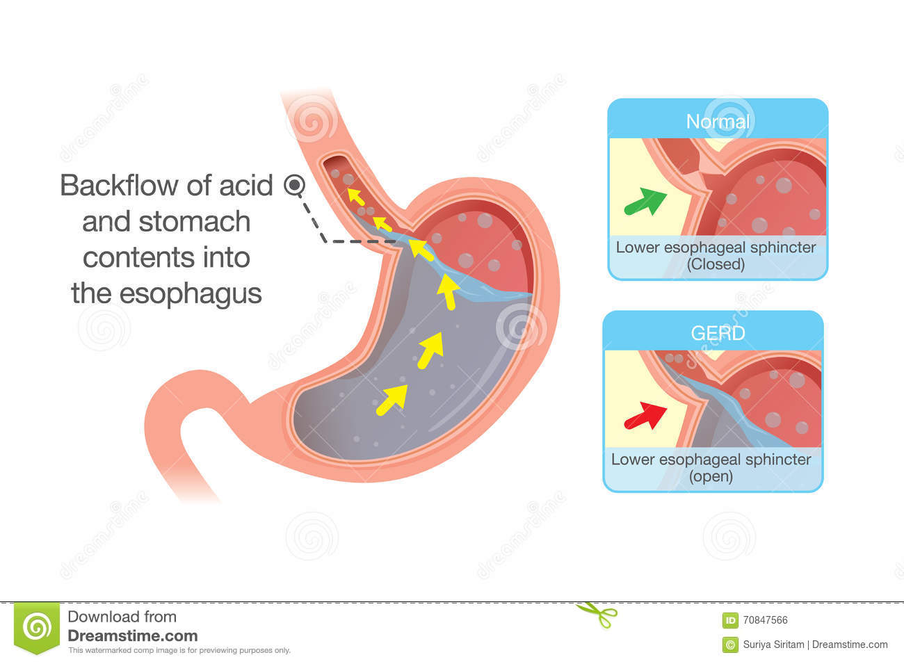 Acid Stomach Back Up Esophagus Medical Illustration Which Cause Gastroesophageal Reflux Disease Medical
