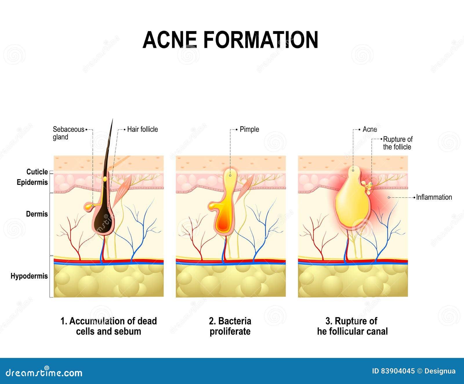 Acne Formation Human Skin Stock Vector  Illustration of bacteria  edo  83904045
