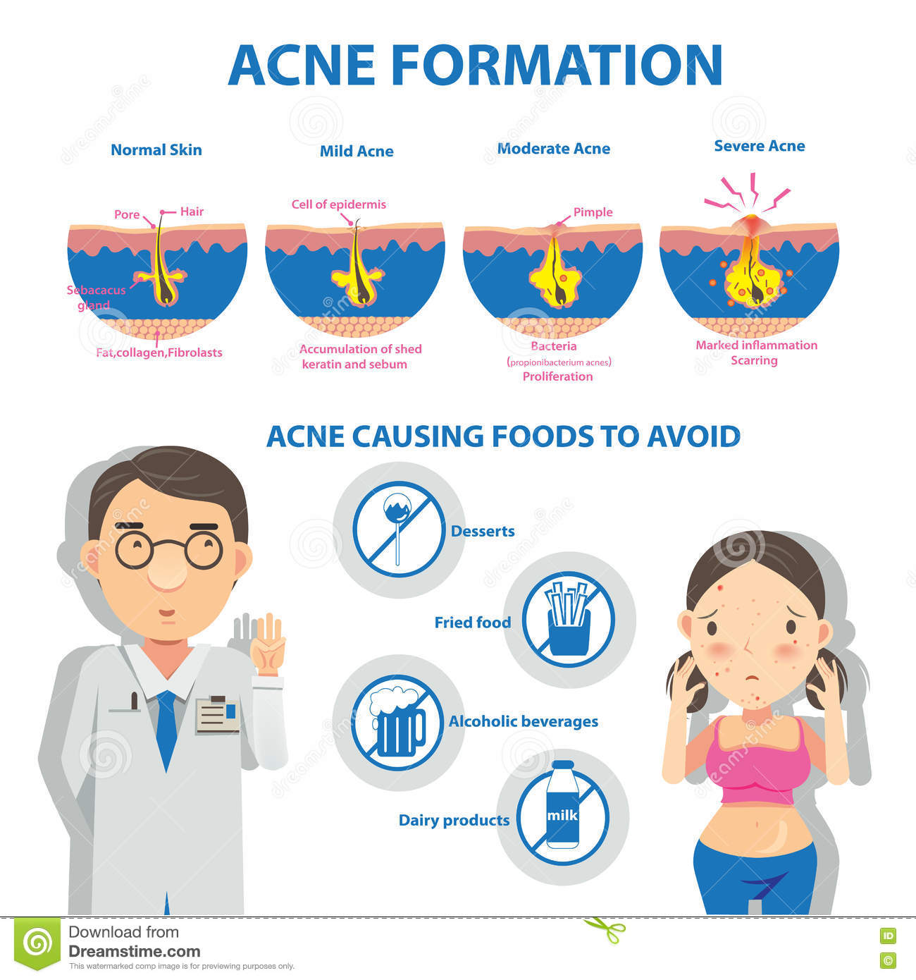 Diagram Acne Cartoons Illustrations U0026 Vector Stock Images