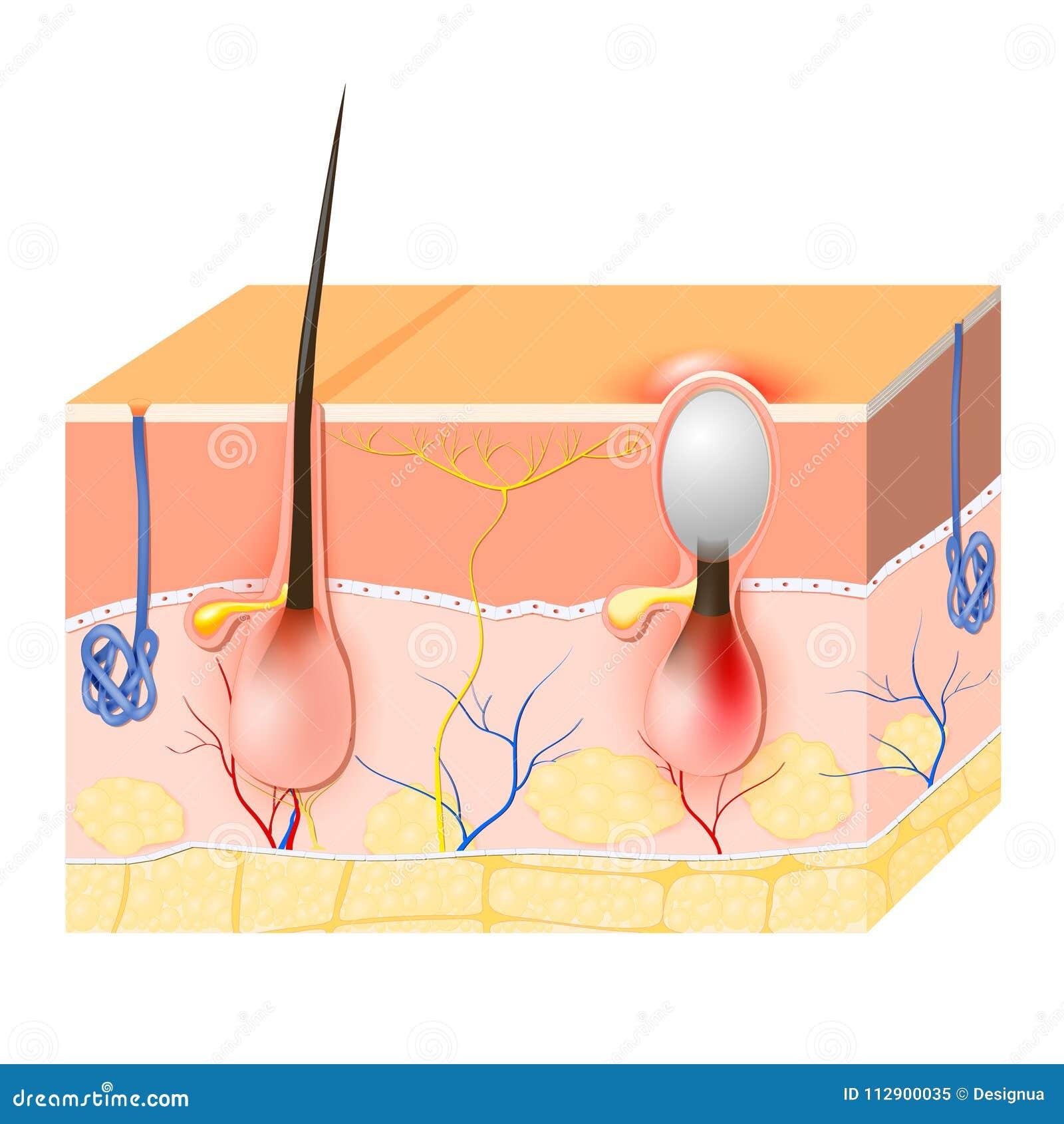 Acne Malattia della pelle