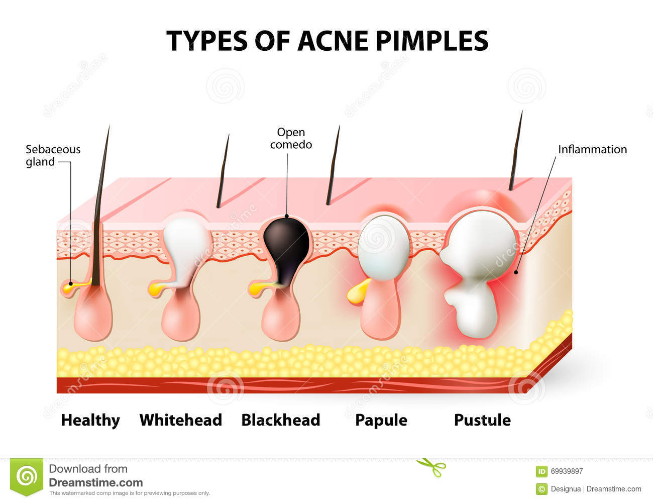pimple diagram acne pimples stock vector illustration of anatomy cell #6