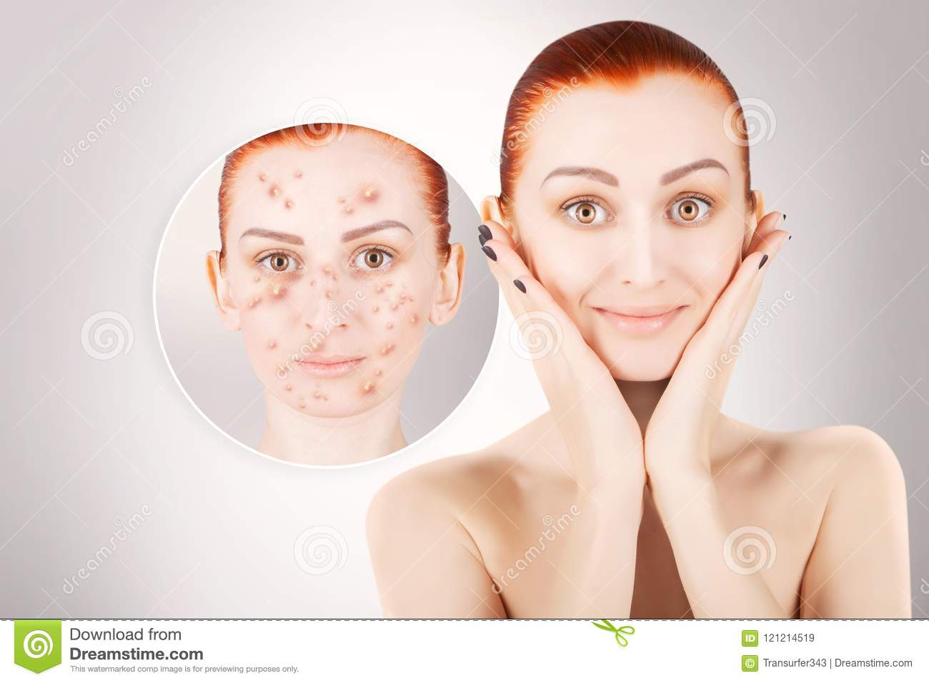 Acne problems, red haired woman portrait over grey background