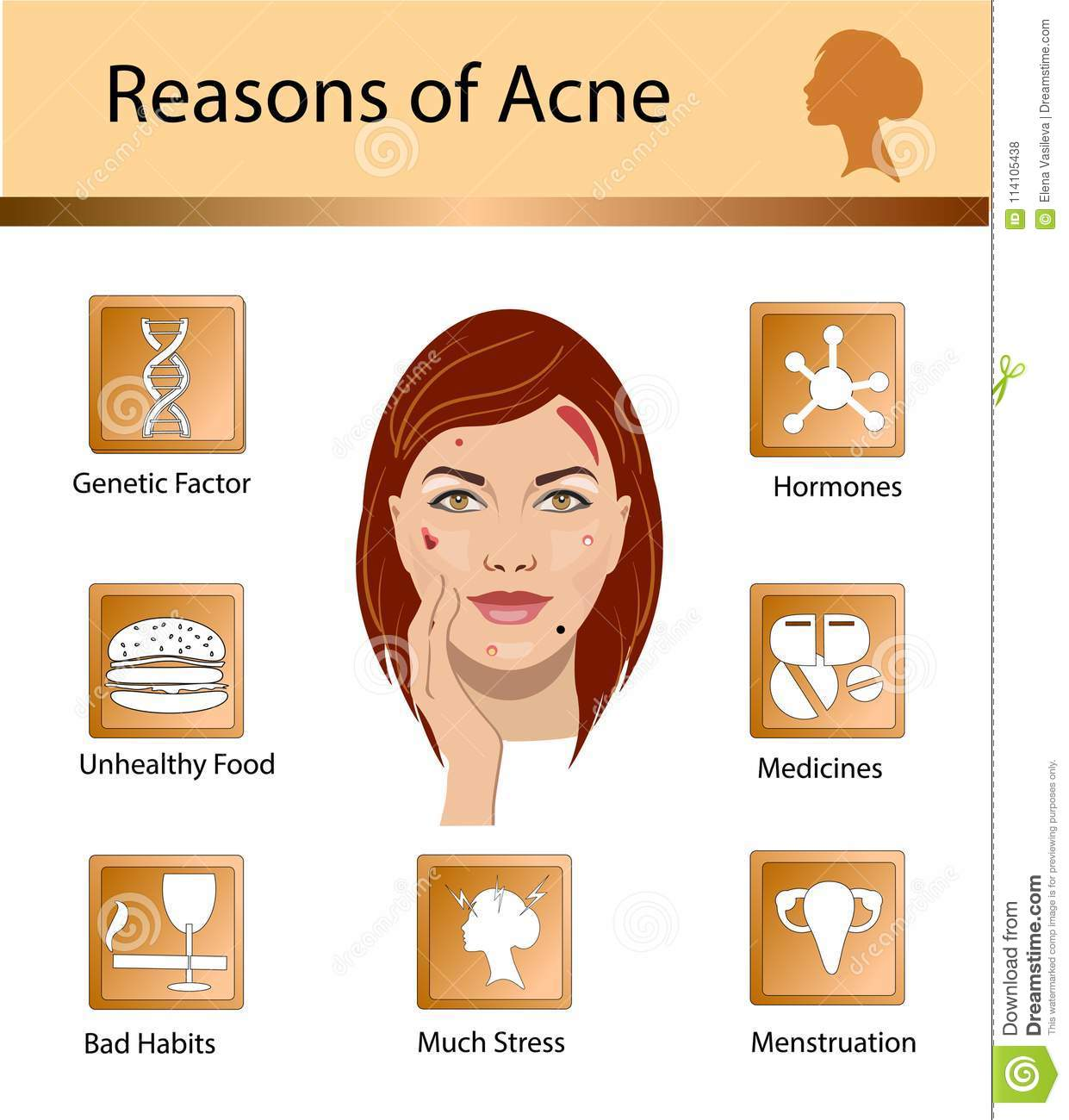 acne reasons skin problems and diseases beauty infographics vectoracne reasons skin problems and diseases beauty infographics vector illustration