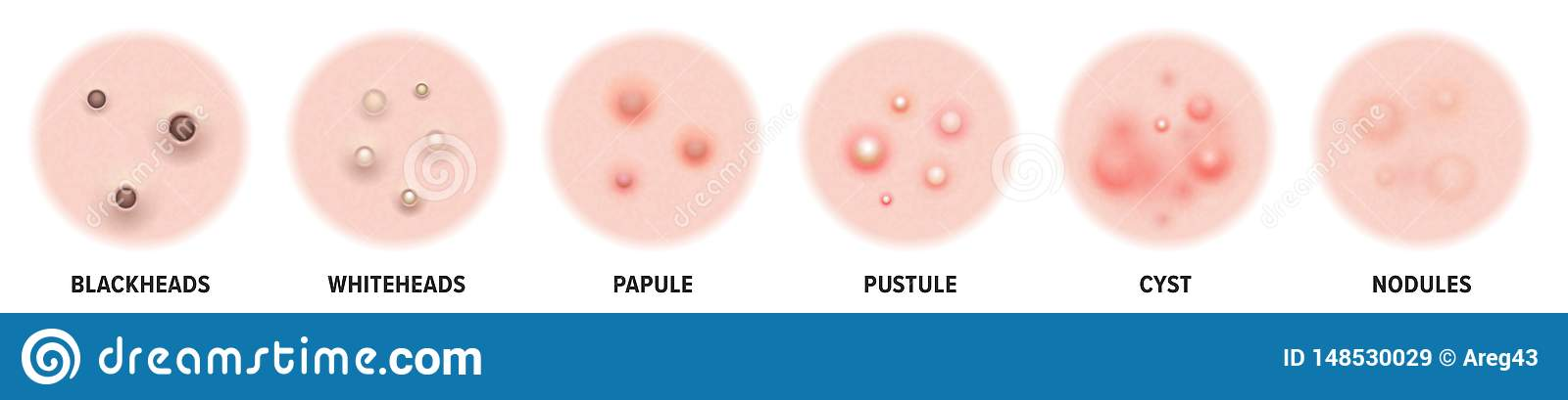 Acne types, skin pimples blackheads and face comedones. Vector icons of skin acne pimples, cosmetology skincare problems