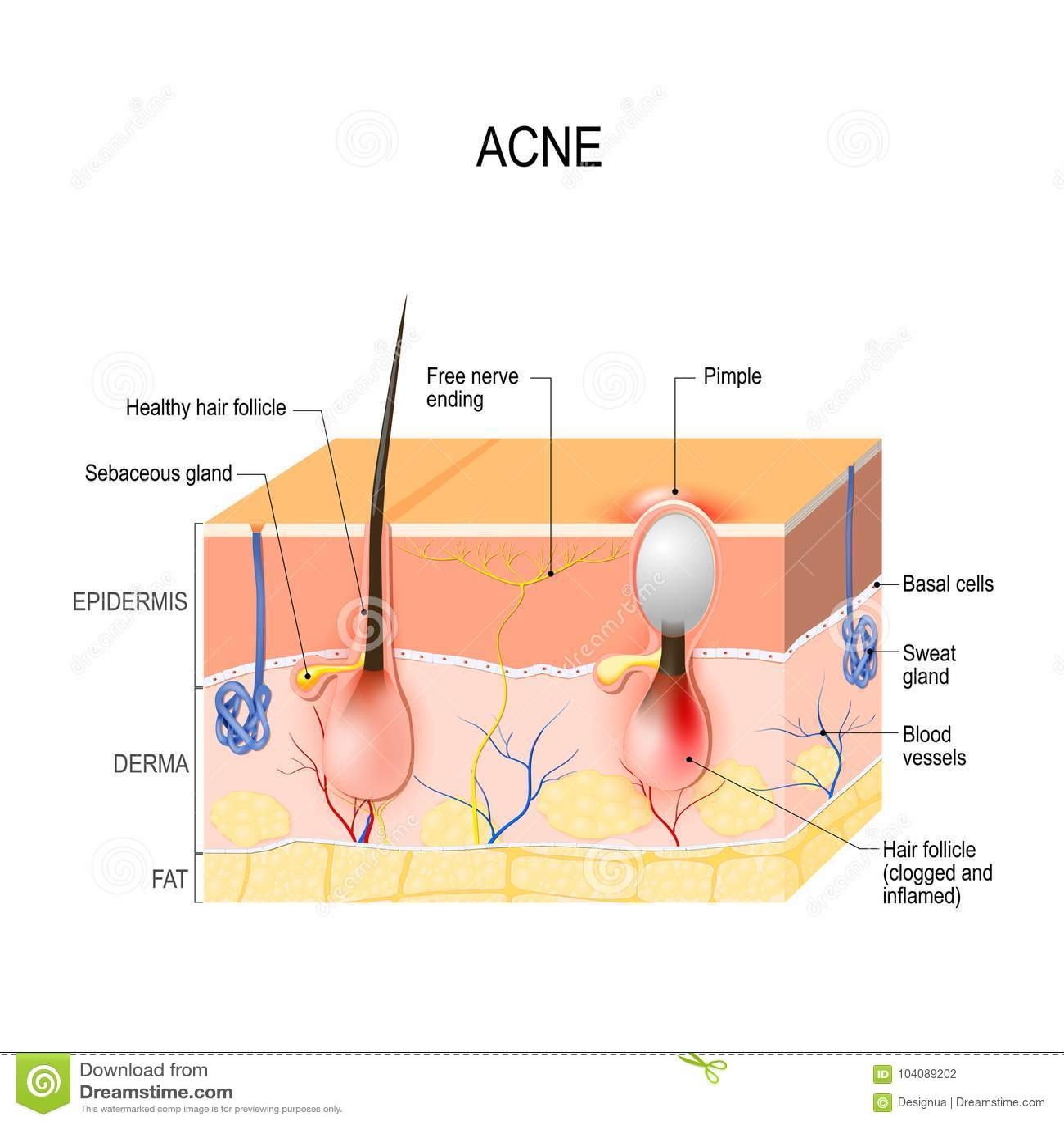Acne vulgaris  pimple  stock vector  Illustration of hair