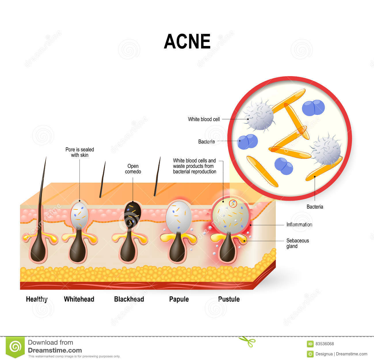 Acne vulgaris or pimple. stock vector. Illustration of ...