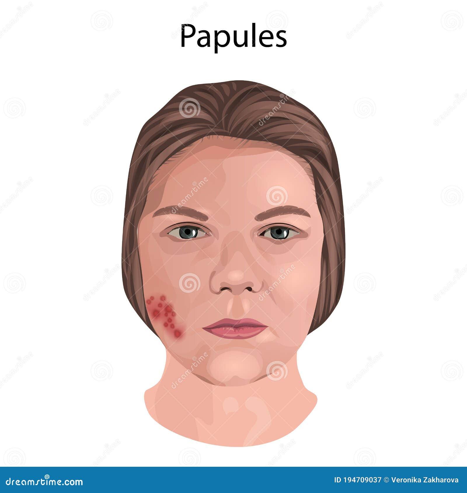 Women papules 3 Ways