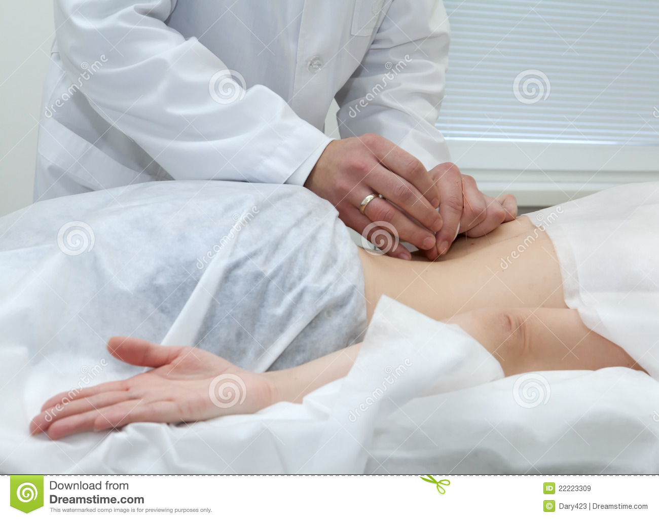 Acupuncture for back stock image. Image of acupuncture ...