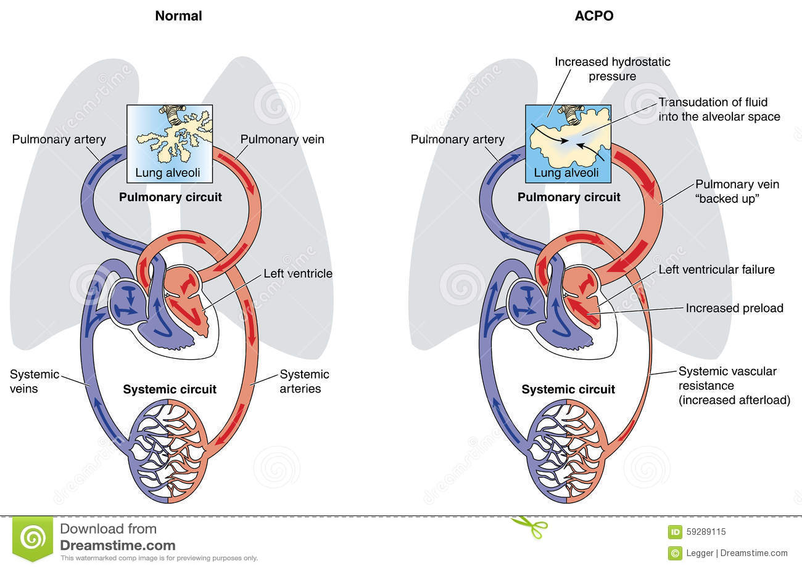 Acute Cardiogenic Pulmonary Oedema Stock Vector Image