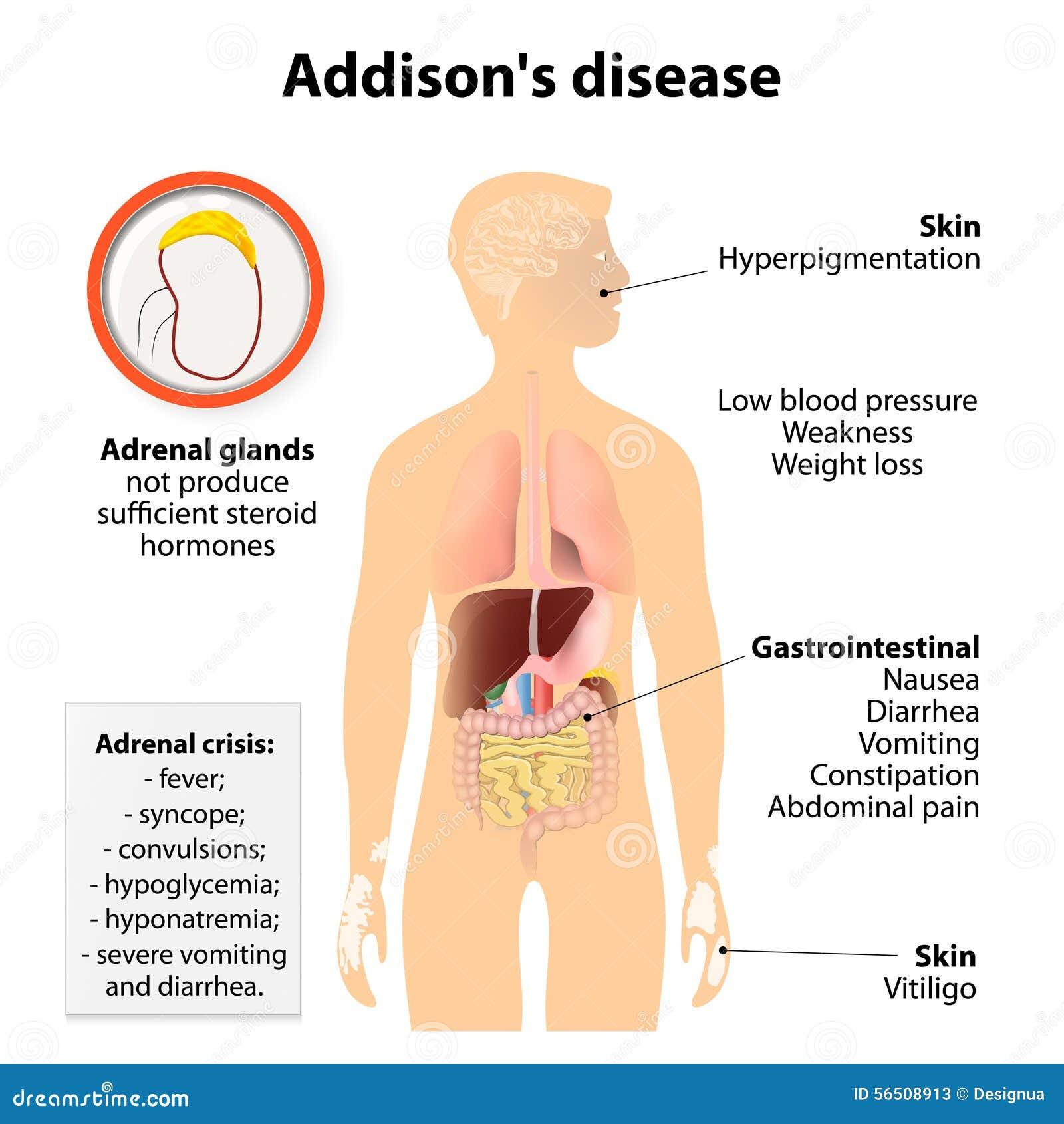Addison choroba