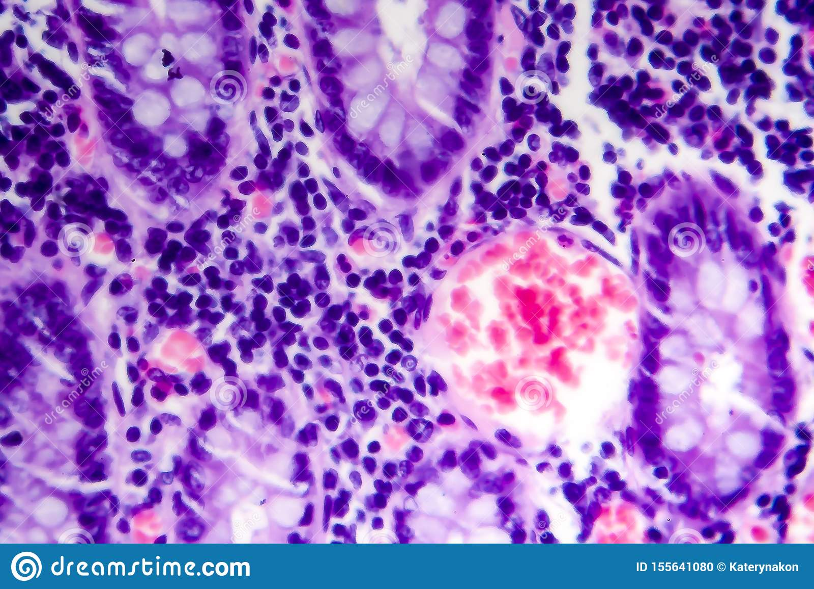 Adenocarcinoma intestinal mal distinguida, micrográfo ligero