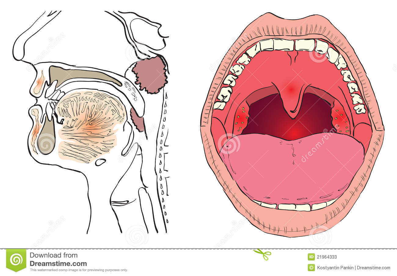 Famous Tonsils And Adenoids Anatomy Elaboration - Anatomy Ideas ...