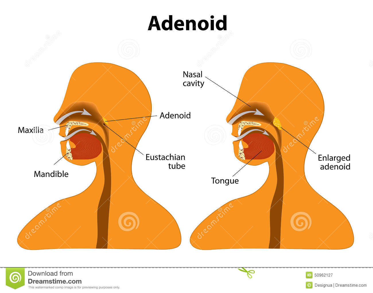 Adenoid. Side view to show the position of the adenoids. The adenoids ...