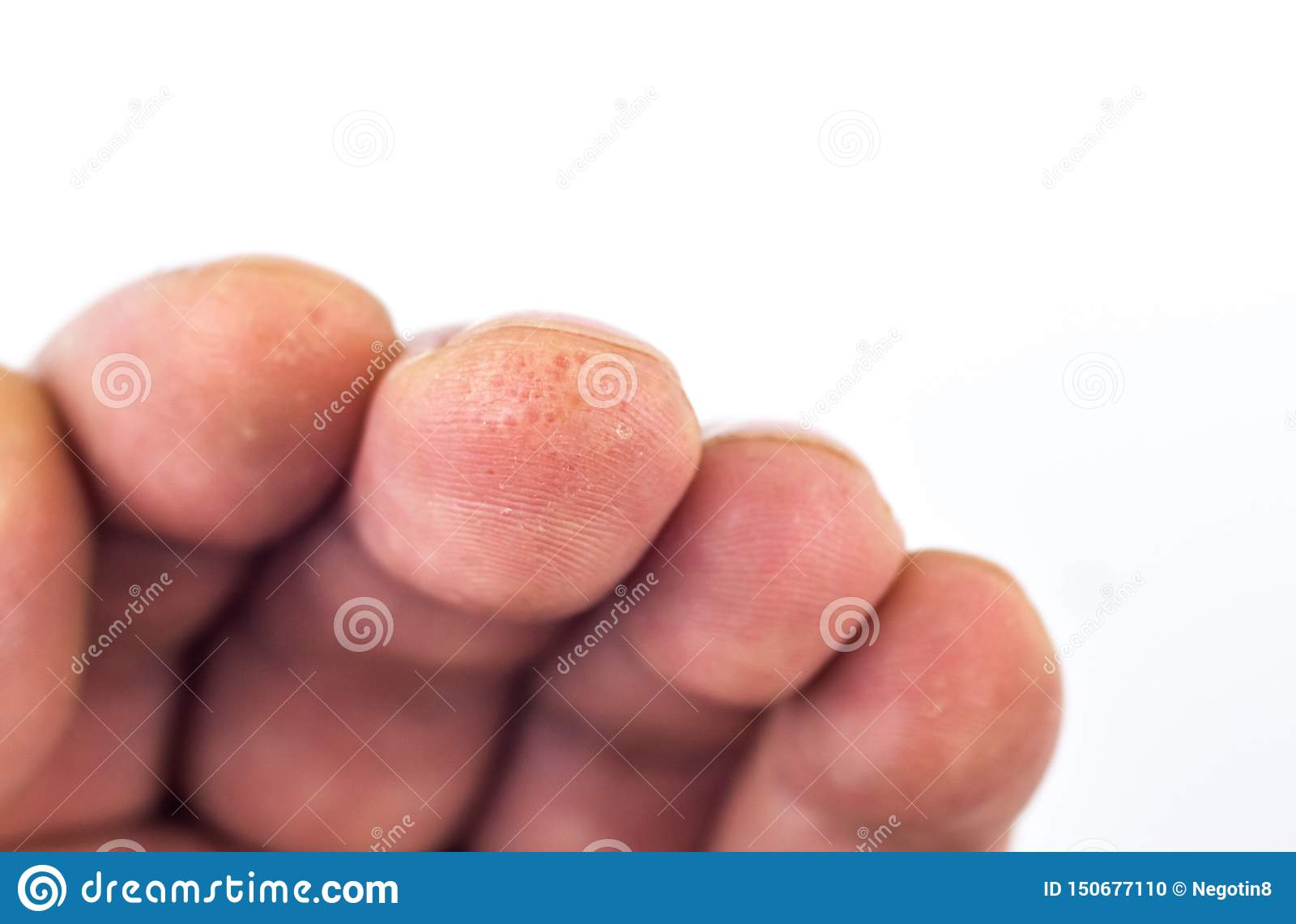 Advanced Stage Of Dyshidrosis On Fingers,cracked And ...