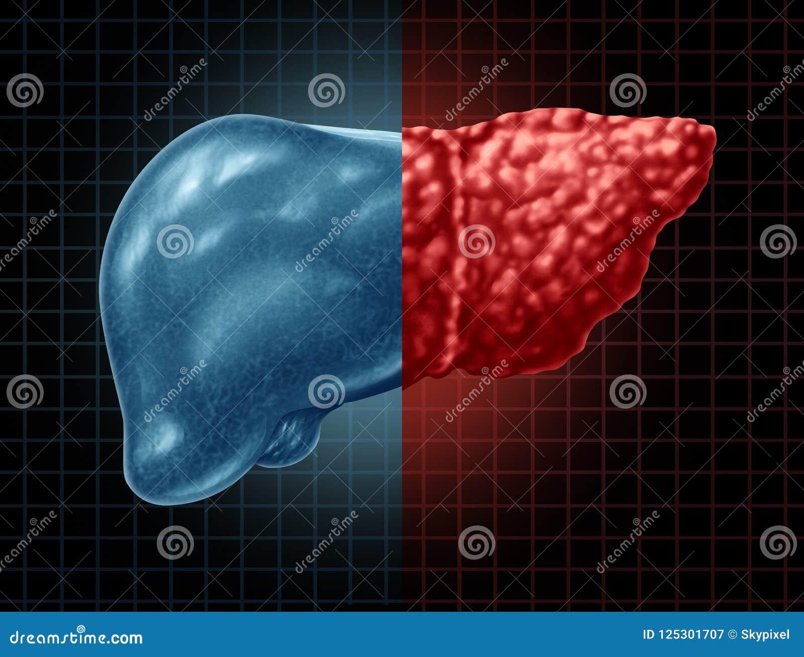 Affection hépatique de stéatose hépatique
