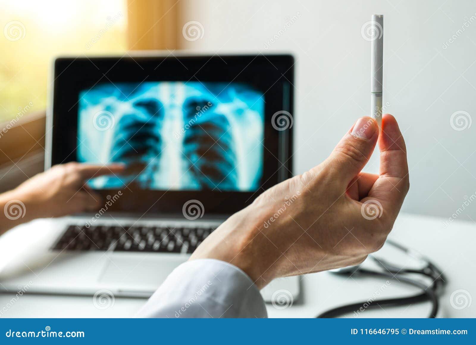 Aggiusti la tenuta della sigaretta e la mostra dei raggi x dei polmoni Concetto di prevenzione del cancro dei polmoni