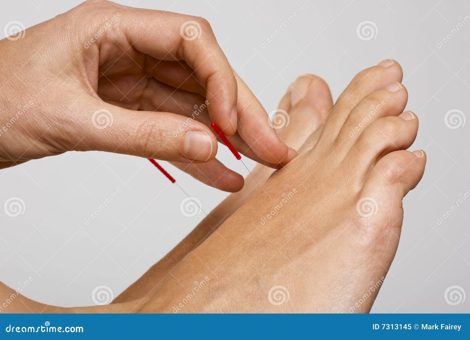 Ago di agopuntura applicato al piede