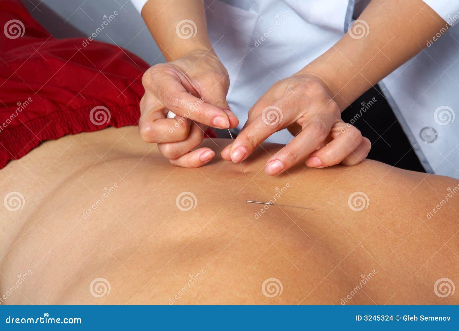 Agopuntura della parte posteriore