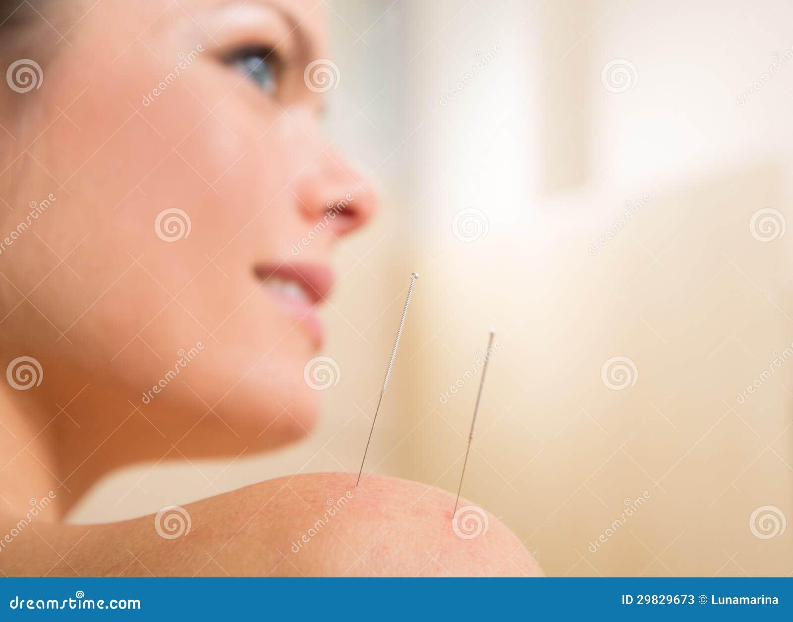 Agulha da acupunctura que pricking no ombro da mulher