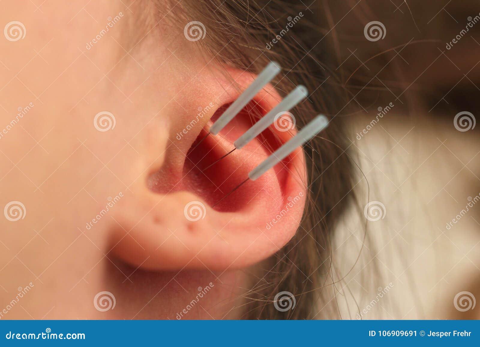 Akupunktura ucho z trzy igłami, ucho z dziurami