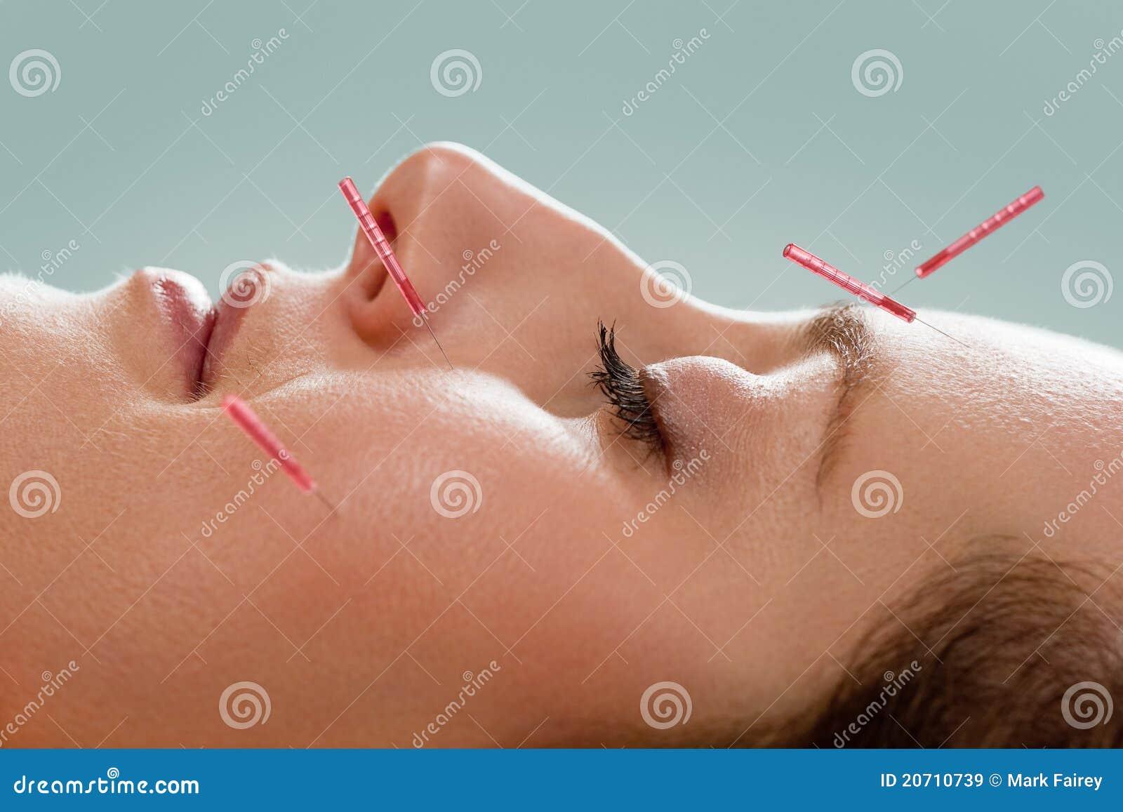 Akupunktury facial