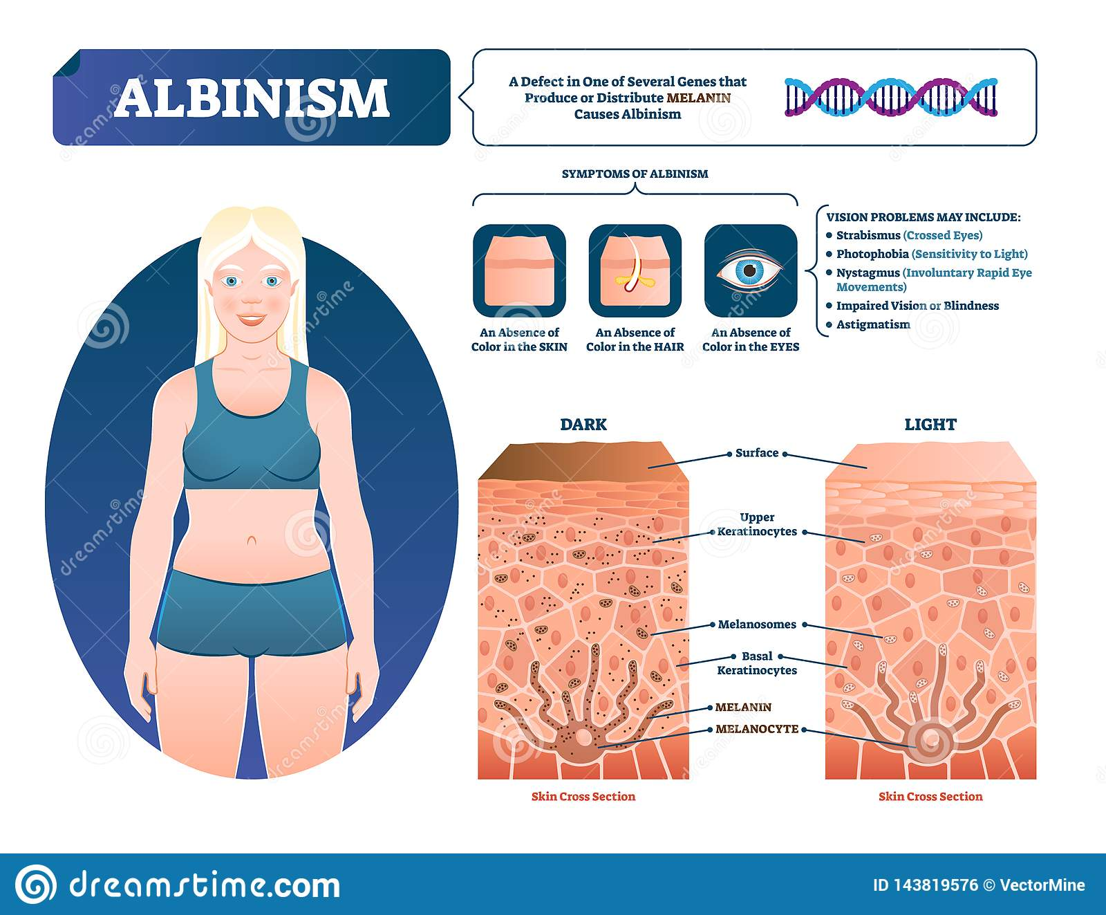 Albinism Vector Illustration  Labeled Medical Melanin