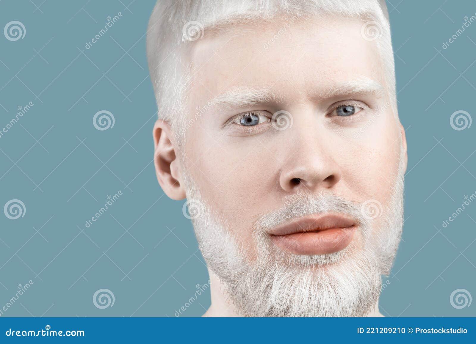 Albinismus. Porträt Von Jungen Bärtigen Albino Mann Mit Weißen ...