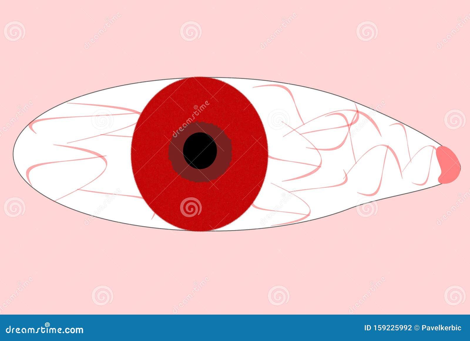 Albino Eye, Rotes Auge Einer Person Stock Abbildung   Illustration ...