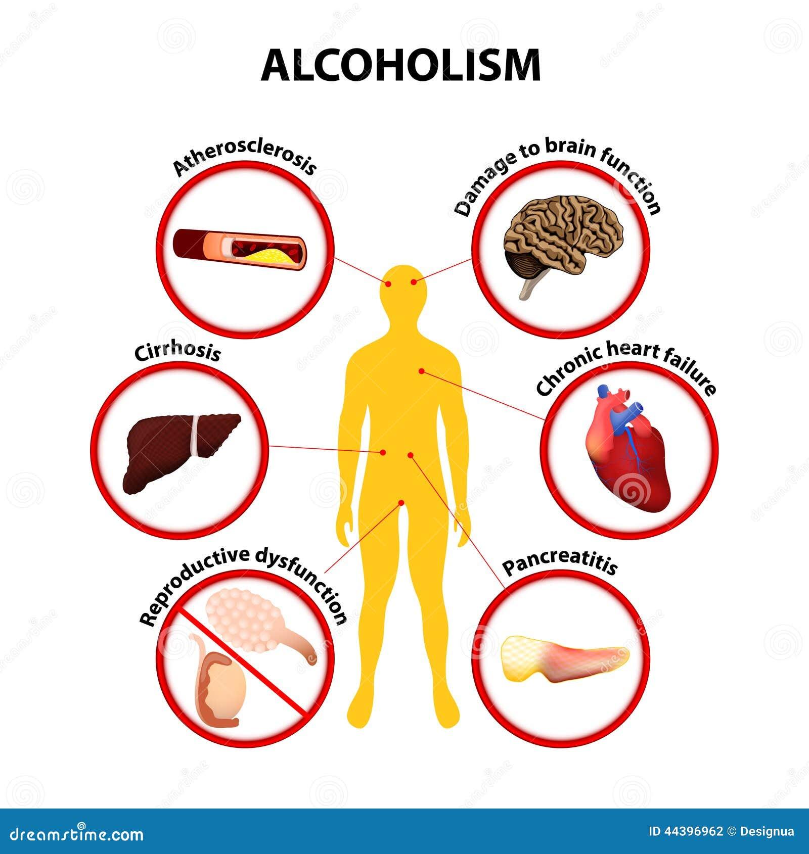 Long Term Clip Art : Alcoholism infographic stock vector image