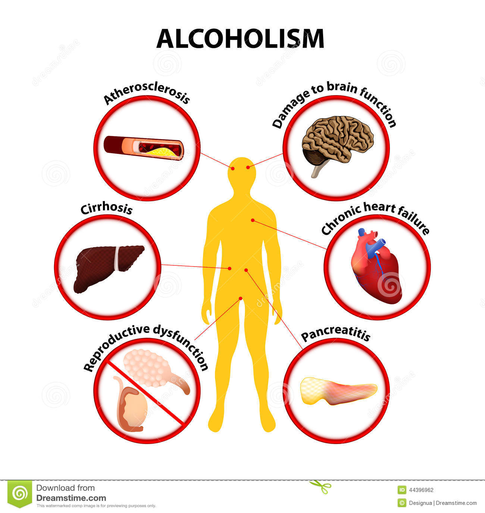 Dipendenza alcolica e strade del suo superamento