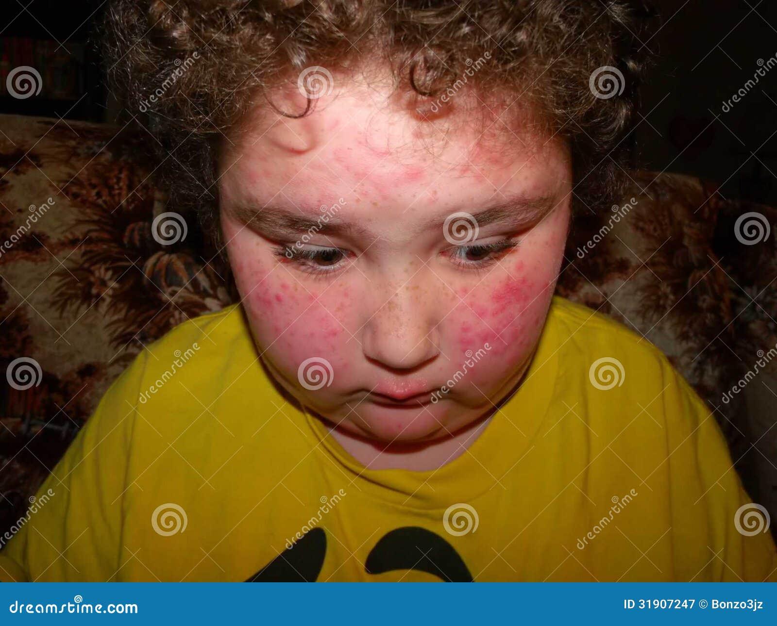 Alergiczna reakcja