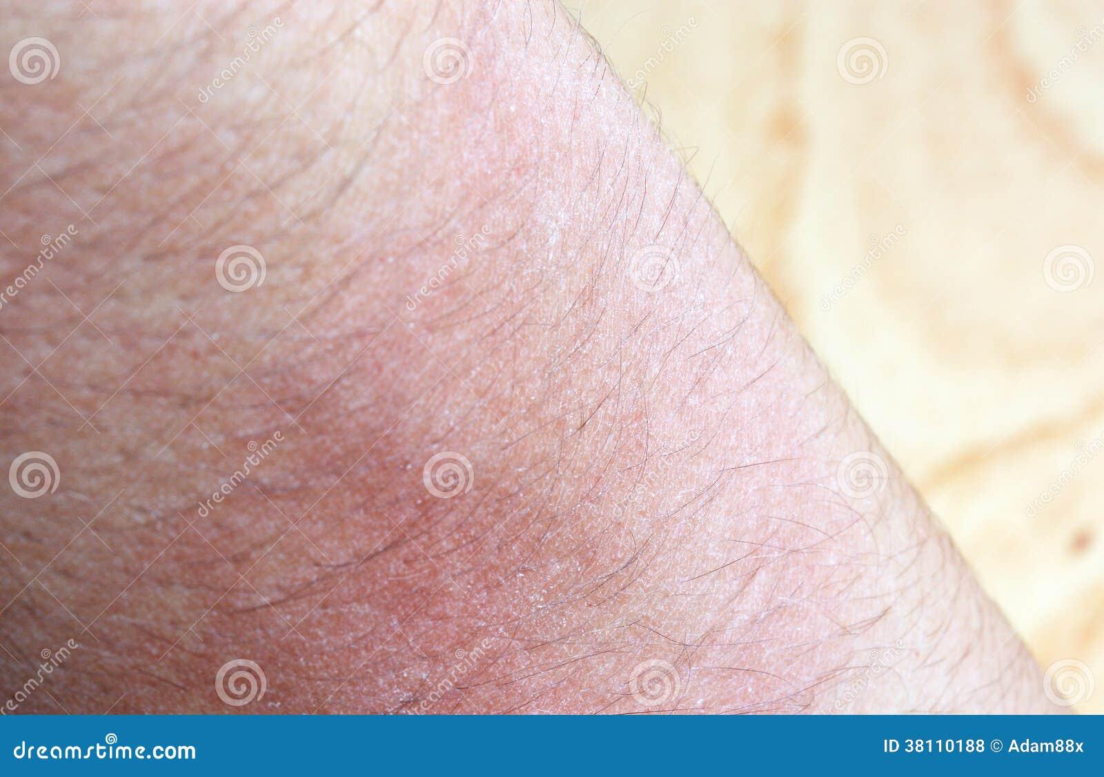 Allergic Rash Dermatitis Eczema Skin Royalty Free Stock Photos - Image ...