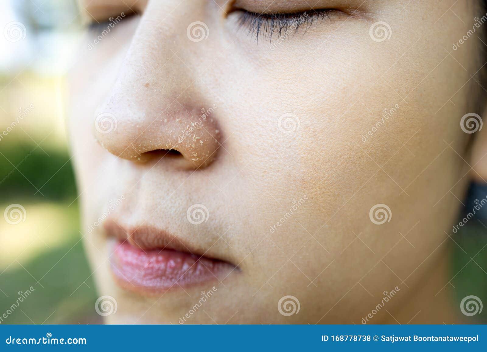 Nase trockene haut Trockene Nasenschleimhaut