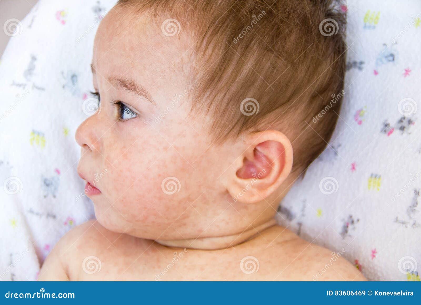 Allergy baby skin dermatitis food. child dermatitis symptom problem rash. face sleeping newborns. suffering atopic symptom on skin