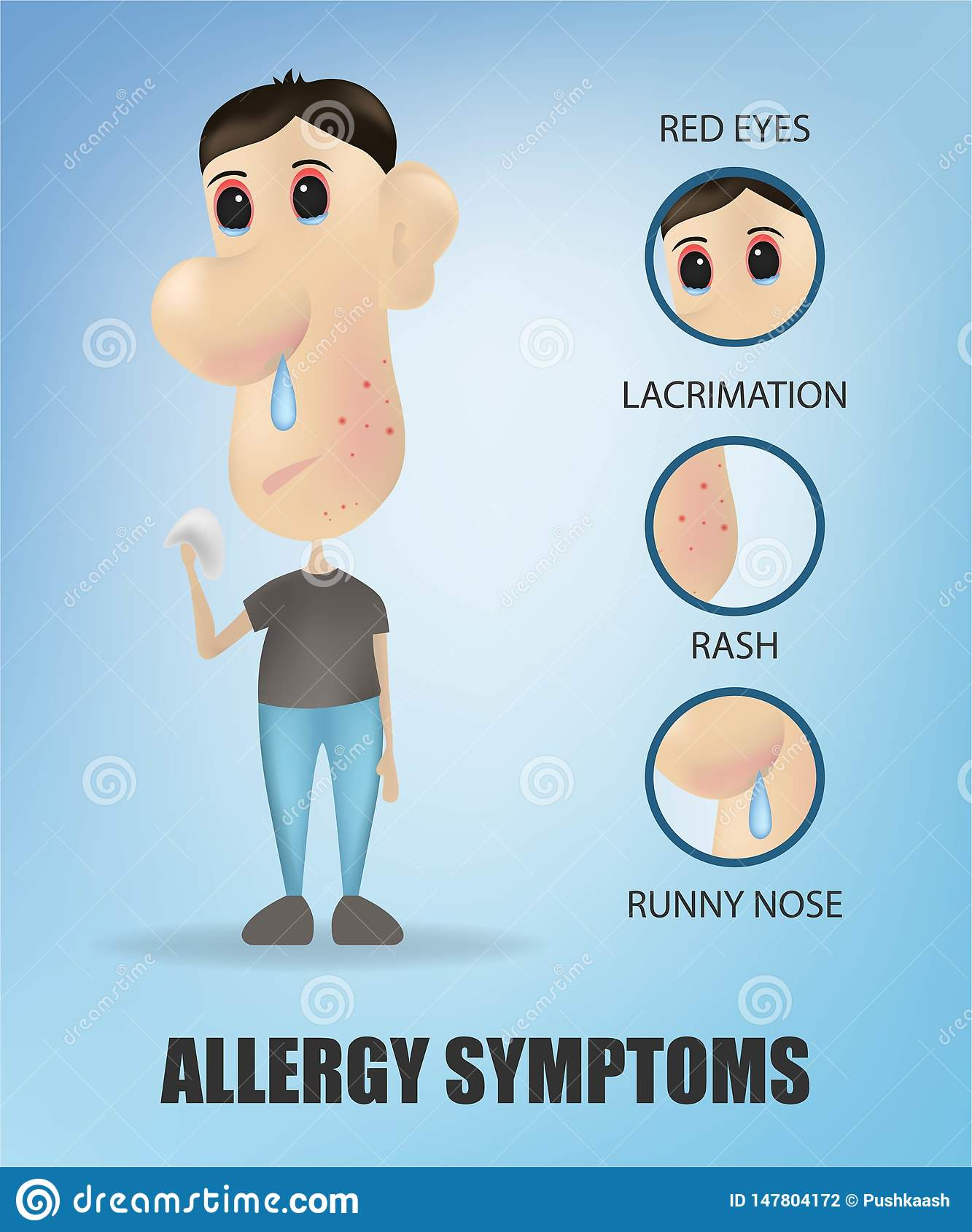 Allergy symptoms concept with cough sneeze itching skin rash runny nose and sick sore eyes . Vector illustration. Young