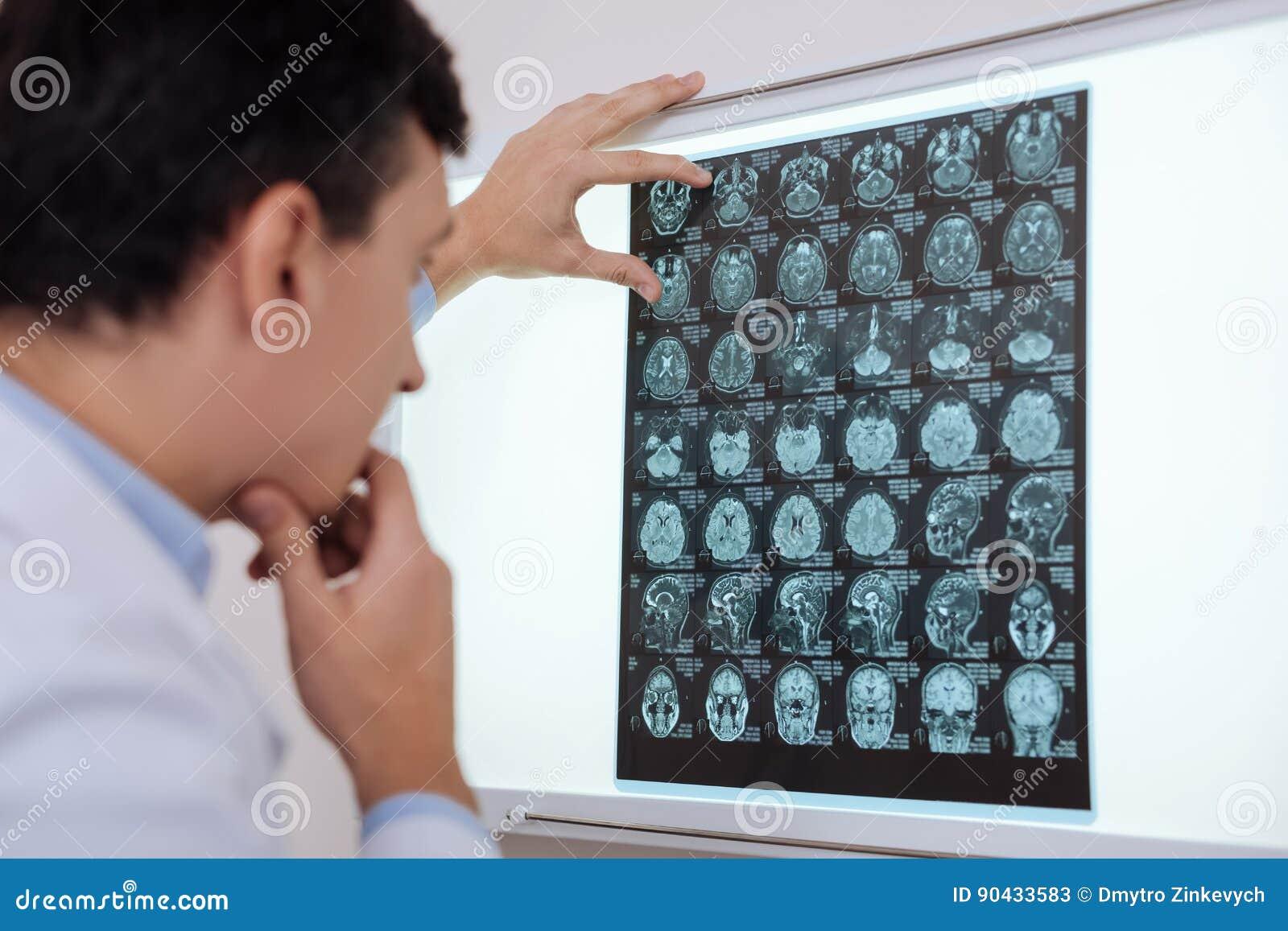 Allvarlig fundersam radiolog som söker efter en hjärnpatologi