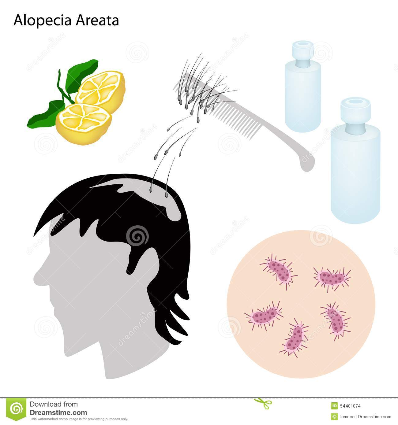 an introduction to the issue of alopecia areata Alopecia areata has been reported to be associated with multiple comorbid conditions, including vitiligo, lupus erythematosus, psoriasis, atopy, thyroid disease, and mental health problems 1,3,5,12,13,24-31 most of these studies are limited by small population size, homogeneous populations, or patient self-reported data.