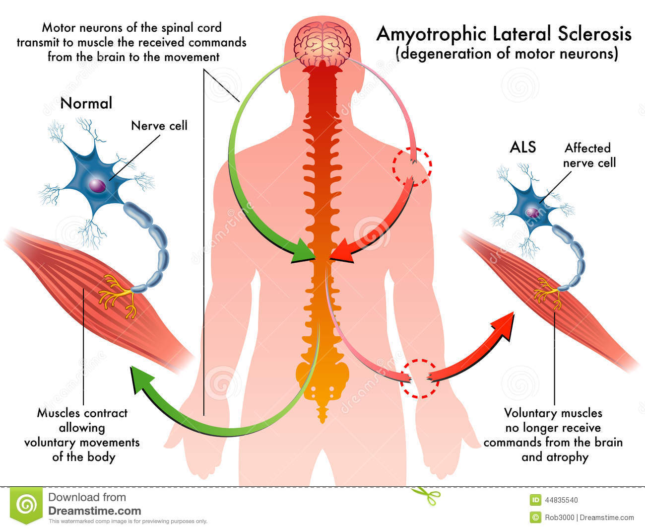 Als Amyotrophic Lateral Sclerosis Stock Vector Image