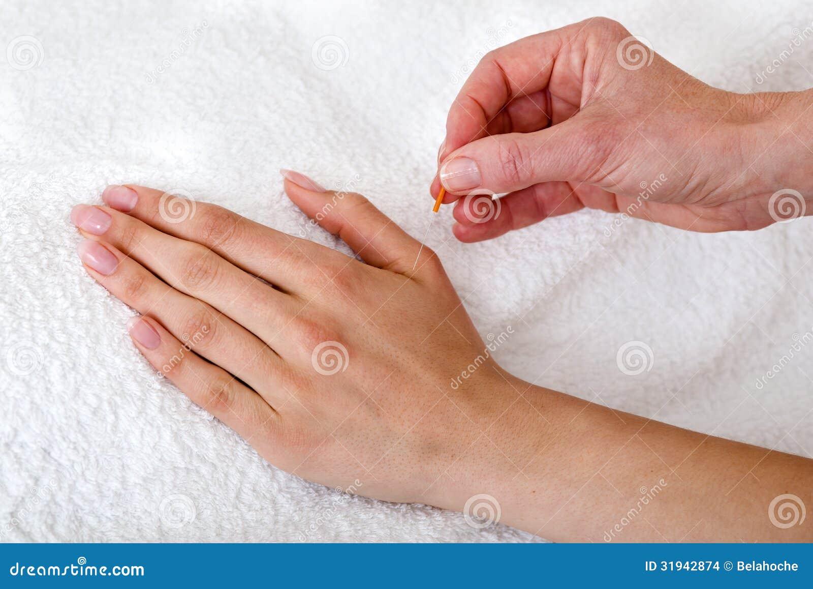 Alternative Practitioner Applying Acupuncture Needles