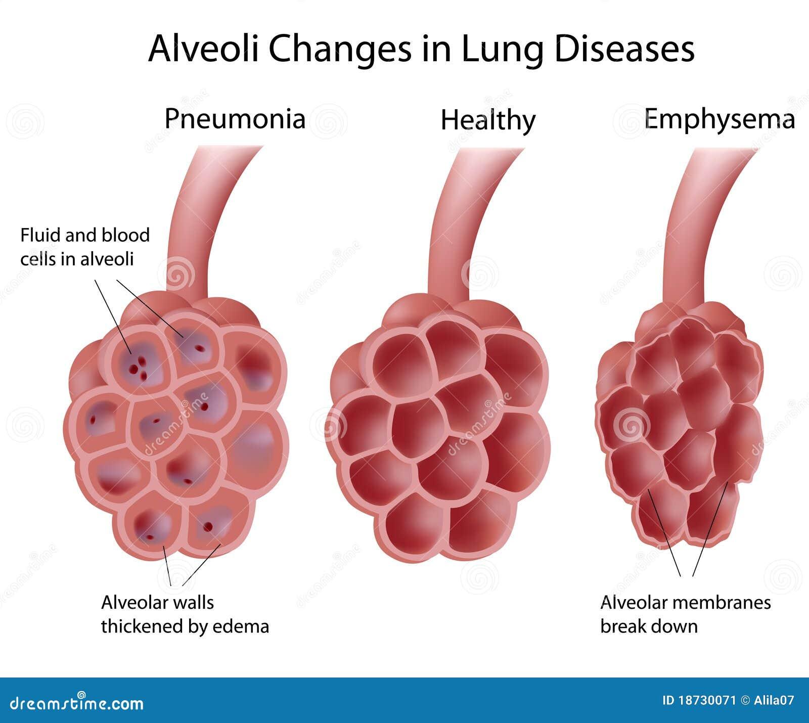 Alvéolos En Enfermedades Pulmonares Ilustración del Vector ...