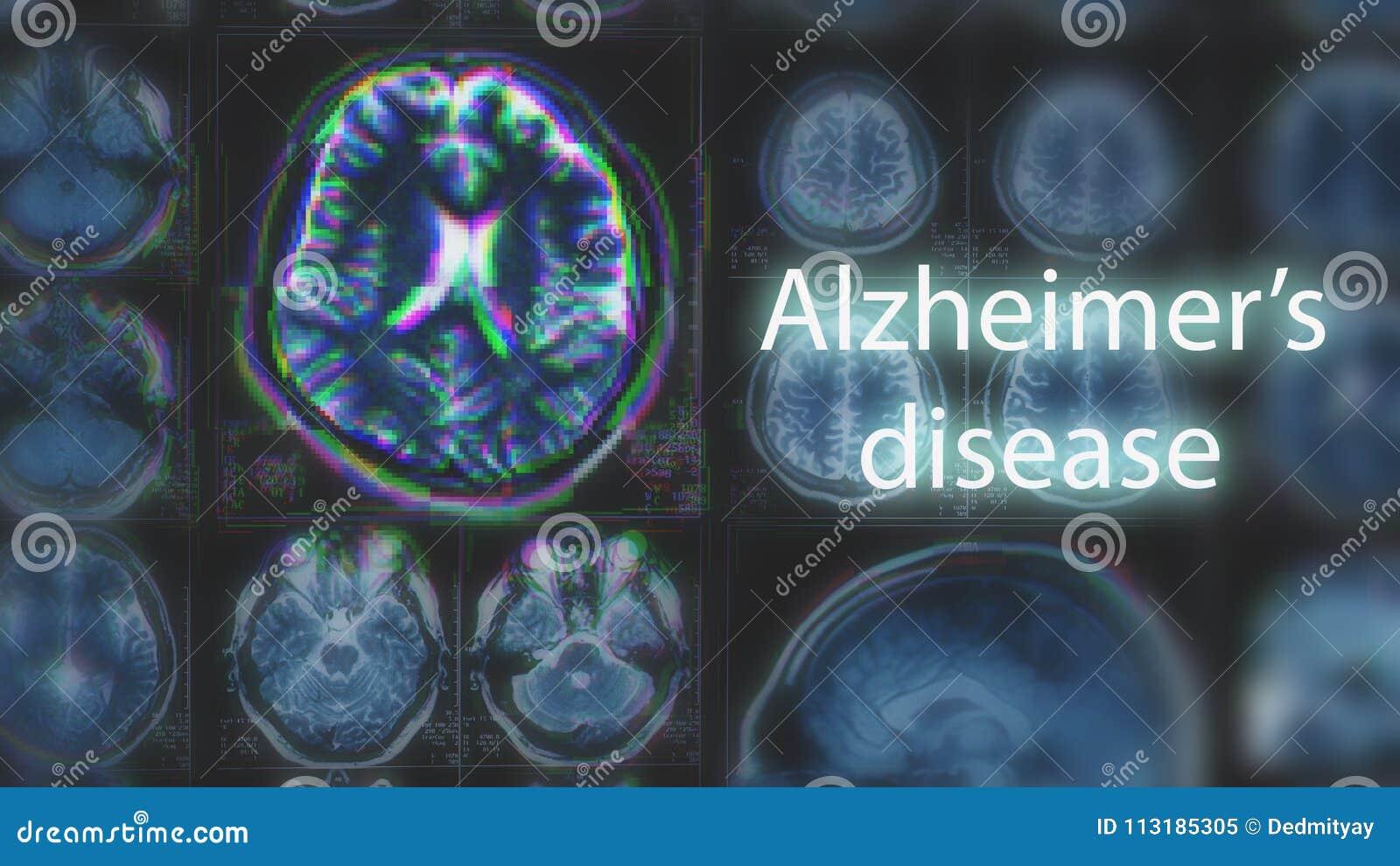 Alzheimer ` s choroba lub Parkinson pojęcie Zamazany MRI obraz cyfrowy mózg z usterka skutkiem