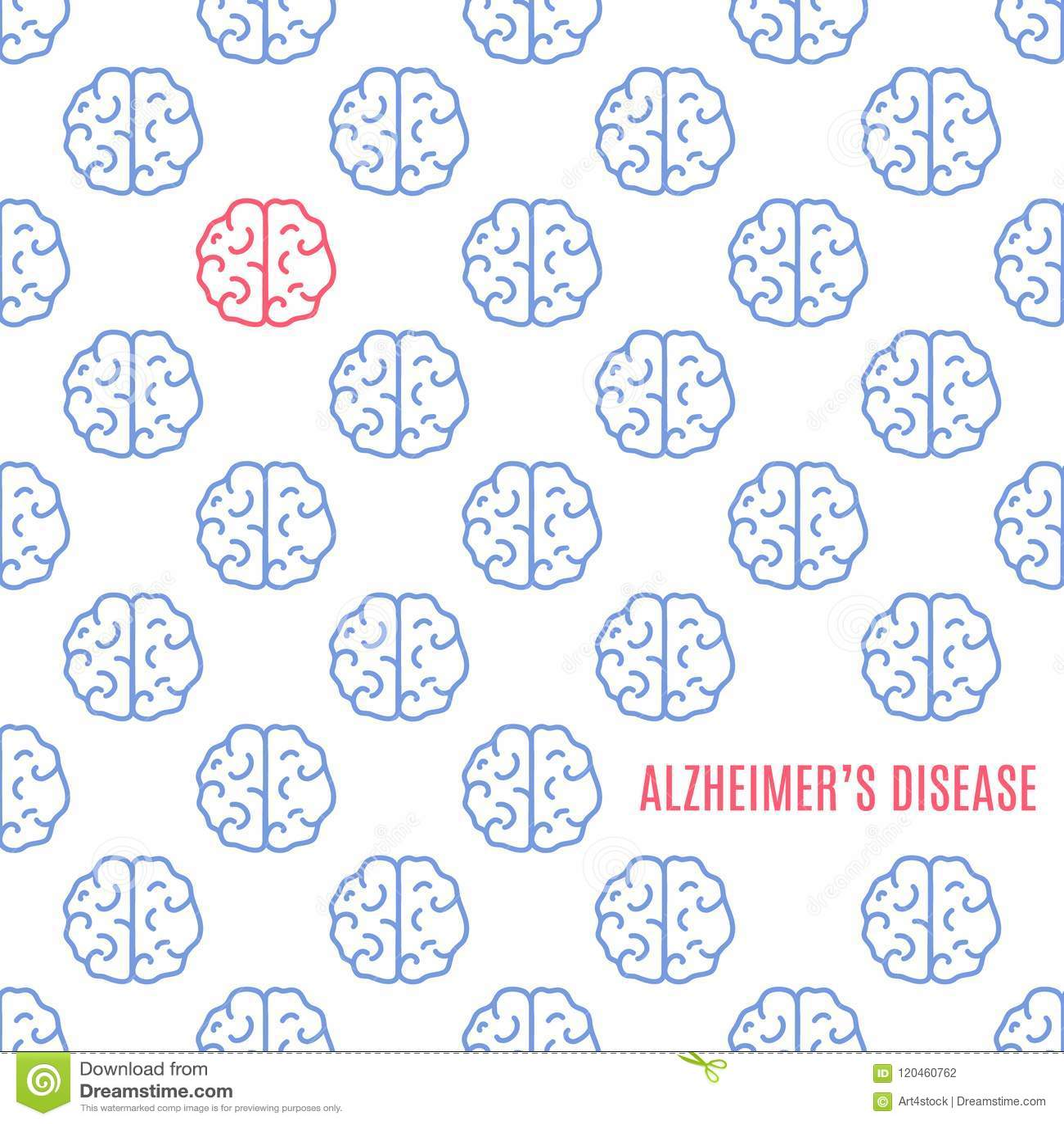 Alzheimer`s Disease Brain Poster. Stock Illustration - Illustration ...