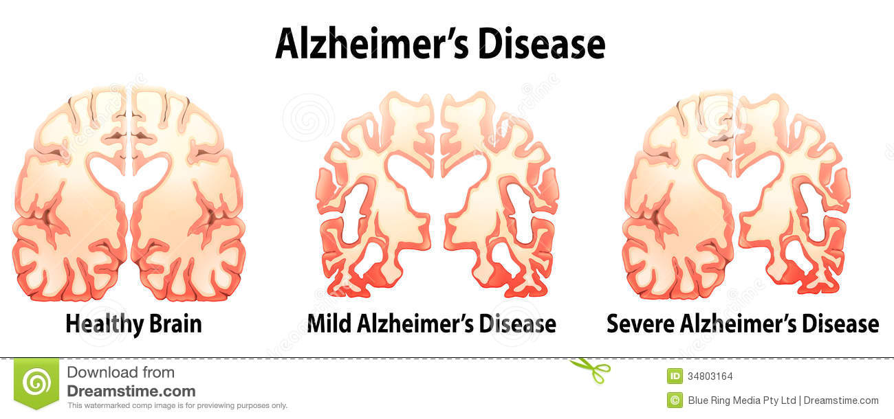 Alzheimer S Disease Stock Illustration Illustration Of