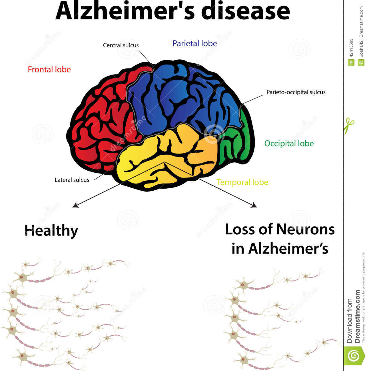 the facts and stages of alzheimers disease