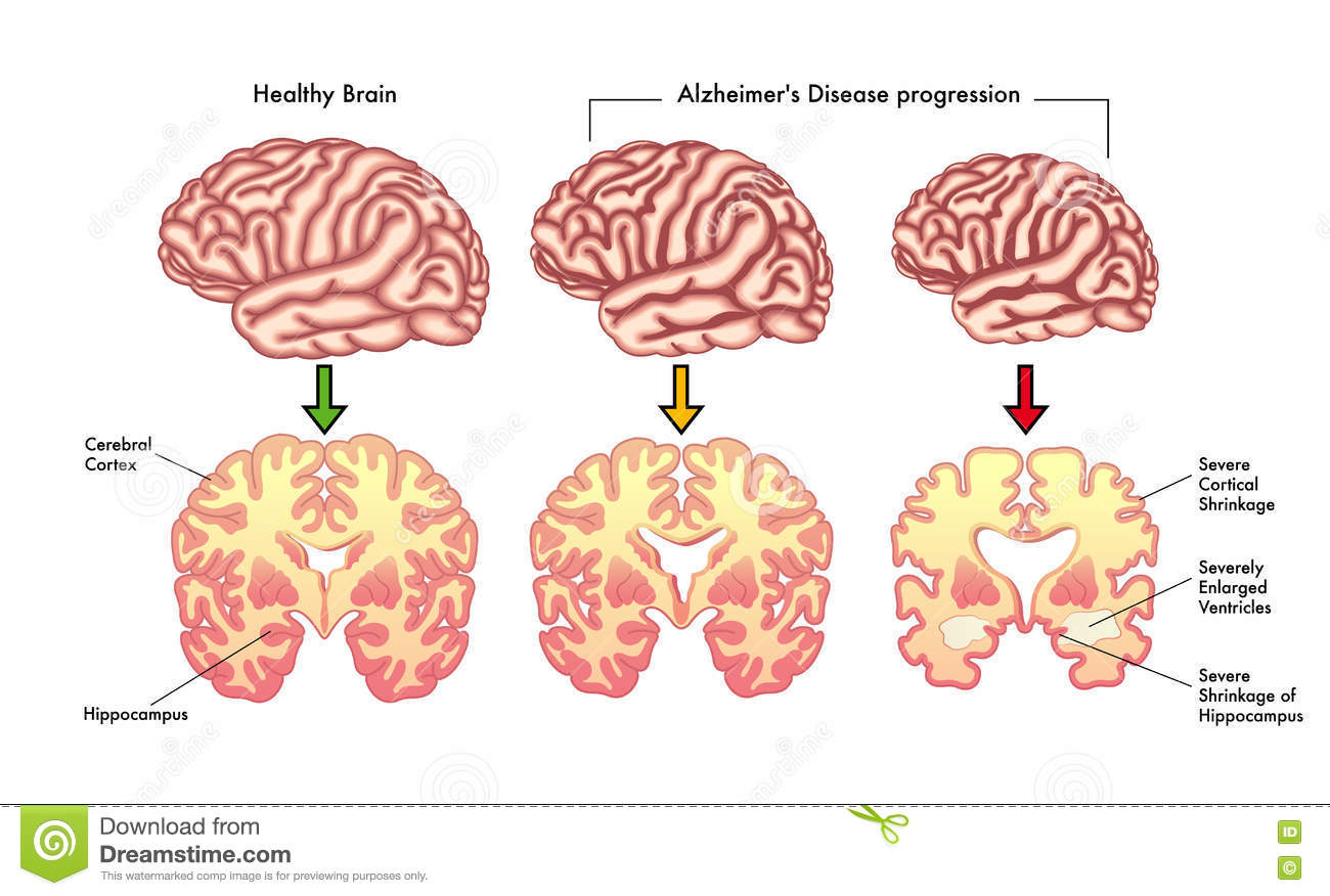 "the aging brain and alzheimer ís disease essay Alzheimer's disease alzheimer's disease is a form of dementia, ""a brain disorder that seriously affects a person's ability to carry out daily activities (shenk 14)."
