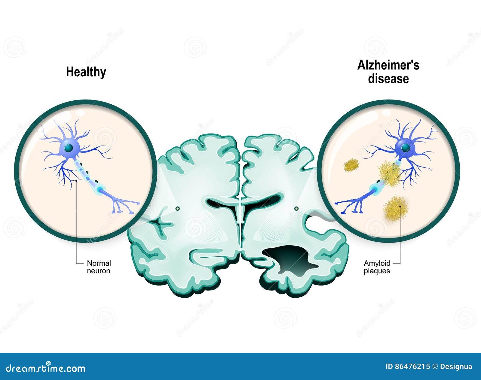 Alzheimer-` S Krankheit Neuronen Und Gehirn Vektor Abbildung ...