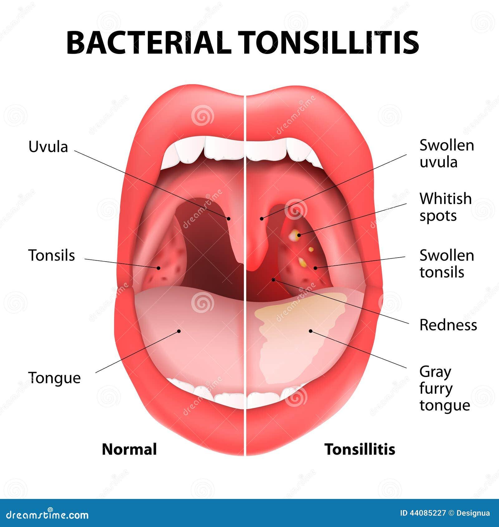 Infection bactérienne de la bouche