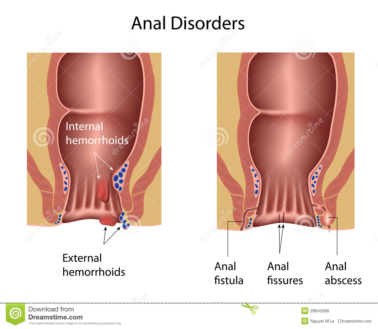 Rectal suppository for anal fissure porn
