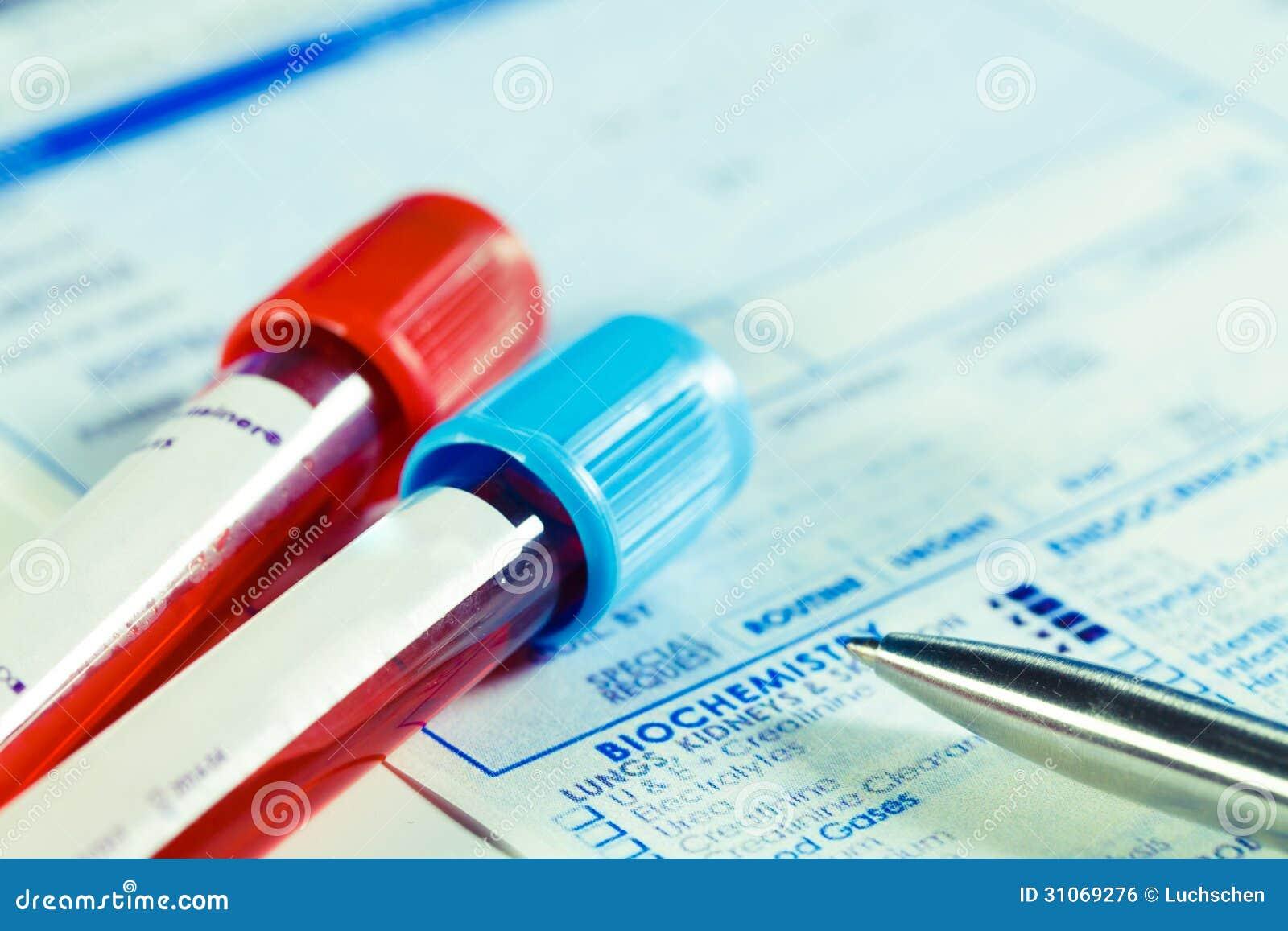 Analisi del sangue di biochimica